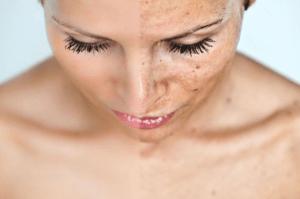 160 Алергія на обличчі