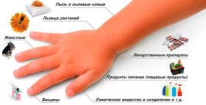 209 Харчова алергія у дітей та дорослих