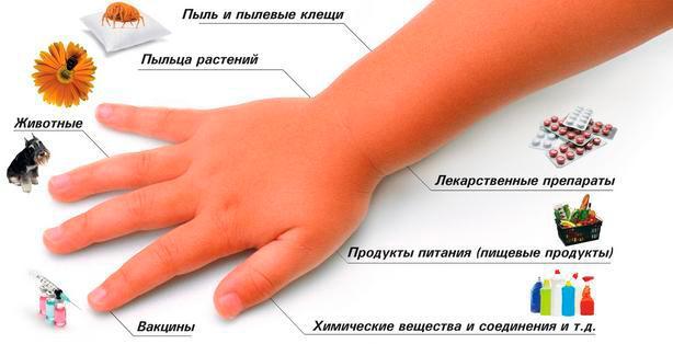 20567 - Харчова алергія у дітей та дорослих