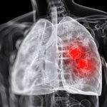 230 Лікування абсцесу легенів