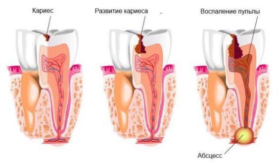 Абсцес зуба