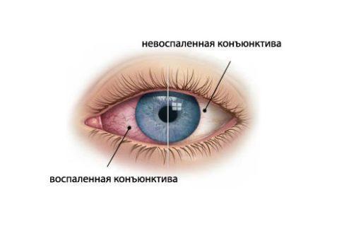 20973 - Симптоми і лікування аденовірусної інфекції очей