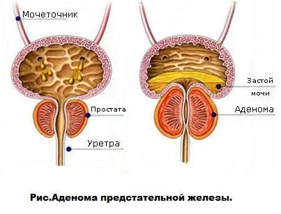 Симптоми і методи лікування аденоми простати у чоловіків