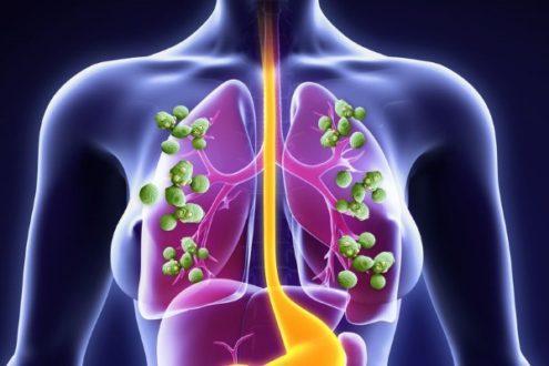 21508 - Симптоми і лікування актиномікозу легень