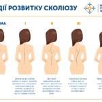 3510 Сколиоз у детей и взрослых: как избежать заболевания